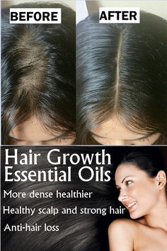 Natural Hair Mask to Boost Hair Growth - Mimicrop Natural Hair Mask, Natural Hair Styles, Before After Hair, How To Grow Eyebrows, Anti Hair Loss, Healthy Scalp, Skin Tag Removal, Get Rid Of Blackheads, Hair Scalp