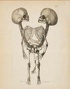 Vintage medical illustration of siamese twins
