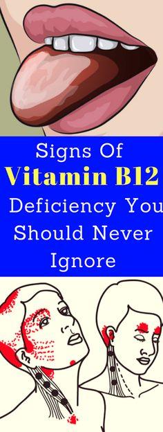 Signs Of Vitamin B12 Deficiency You Should Never Ignore - seeking habit