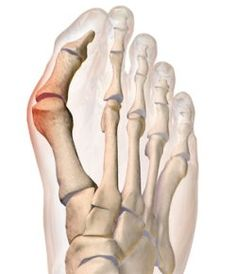 Everything you need to know about bunion surgery Bunion Surgery, Types Of Surgery, Laser Surgery, Surgery Recovery, Foot Pain, Plantar Fasciitis, Rheumatoid Arthritis, Running Workouts, Nurse Life