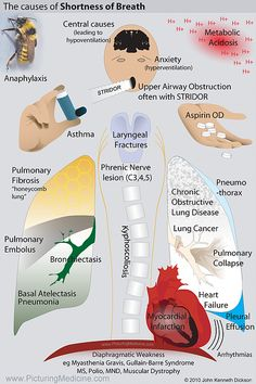 For people who are experiencing asthma, this can be very uncomfortable. There are so many people who want to get rid of their asthma because it is quite Respiratory Therapy, Respiratory System, Idiopathic Pulmonary Fibrosis, Guillain Barre, Nursing Mnemonics, Icu Nursing, Nursing School Notes, Medical School, Emergency Medical Technician
