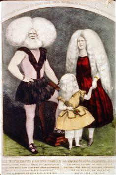 The Wonderful Albino Family