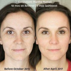 Gorgeous and glowing! A fellow consultant posted this before and after yesterday and I was so taken by it, I had to repost today! Take a moment to zoom in on this one! I mean...really, when you have products that can do THIS...why use anything else? Message me for your personal consultation and get started on your glowing results with Rodan + Fields premium skin care products! #wow