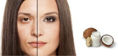 Wrinkle is common problem during aging. But it can be treated easily available thing at out home. You can use Coconut oil for wrinkle treatment. The stages of aging can be different from person to person. Some start developing the signs of aging at the age of 30s. Some shows signs of aging at mid 30s.