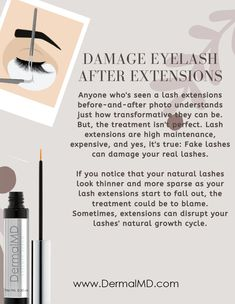 After a year of eyelash extensions, my natural lashes were short, sparse, and thin. Here's how You can recover your eyelash growth serum Natural Eyelashes, Fake Lashes, How To Grow Eyelashes, Eyelash Growth Serum, Rosacea, Chemist, Eyelash Extensions, The Cure, False Lashes