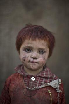 Gul Bibi Shamra, 3 anos de idade.  Fotografia: AP / Muhammed Muhelsen. Retratos de crianças afegãs refugiadas, brincando em uma favela nos arredores de Islamabad, no Paquistão.