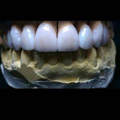 Veneer prais emax bl1 فيننير امبرس ايماكس بي ال 1 by platinumbrightness Our Cosmetic Dentistry Page: http://www.myimagedental.com/services/cosmetic-dentistry/ Google My Business: https://plus.google.com/ImageDentalStockton/about Our Yelp Page: http://www.yelp.com/biz/image-dental-stockton-3 Our Facebook Page: https://www.facebook.com/MyImageDental Image Dental 3453 Brookside Road Suite A Stockton CA 95219 (209) 955-1500 Mon - Fri: 8am - 5pm myimagedental@gmail.com