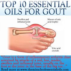 Gout can be very painful and take a toll on your body. Using essential oils for gout is a valuable natural way to minimize the pain & inflammation as well joint pain relief essential oils Essential Oils For Gout, Essential Oil Uses, Young Living Essential Oils, Essential Oils For Inflammation, Gout Relief, Pain Relief, Arthritis Relief, Gout Remedies, Cures For Gout