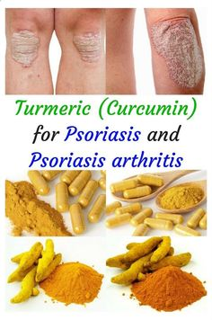 Psoriasis Diet - Turmeric (curcumin extract) is a powerful anti-inflammatory herb with liver detox properties. Highly recommended for Psoriasis and Psoriasis arthritis #Turmericpsoriasis #Turmericpsoriasisarthritis #Turmericeczema #Turmericskin #Turmericinflammation REAL PEOPLE. REAL RESULTS 160,000+ Psoriasis Free Customers