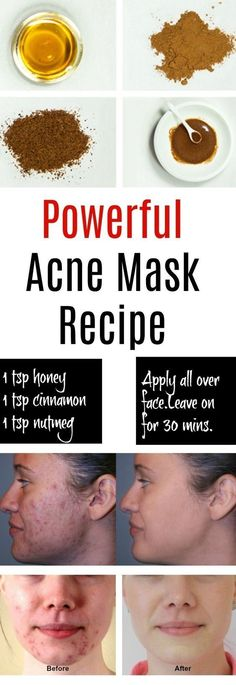 Eliminate Your Acne-Remedies - Natural Acne Mask - Free Presentation Reveals 1 Unusual Tip to Eliminate Your Acne Forever and Gain Beautiful Clear Skin In Days - Guaranteed! Homemade Acne Mask, Homemade Skin Care, Homemade Acne Remedies, Diy Mask For Acne, Best Masks For Acne, Makeup For Acne, Homemade Facials For Acne, Facemasks Homemade, Diy Facemasks For Acne