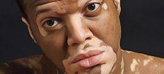 Soigner vitiligo naturellemen