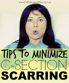 C-section scarring will fade, but these tips will help minimize scarring, too! | Fit Bottomed Mamas