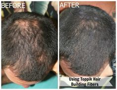 Toppik Hair Building Fibers for those dealing with Hair Loss!  It Works.
