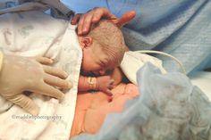 Maddie B Photography >> blog >> Loveland, Colorado birth photography by Maddie B Photography #birth #photography #birthphotography #csection #maddiebphotography