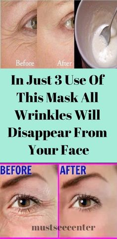This 3-step treatment will iron out the wrinkles on your face and resolve other skin problems. Here's how to perform it: Step 1 – steaming Soak a towel in hot water first, then cover your face with it for a couple of minutes before rinsing with lukewarm water. This will open up your pores and …