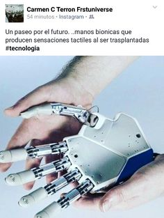 Manos bionicas sensoriales #tecnologia
