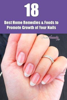 Best Foods & Home Remedies to Grow Nails Faster & Stronger At Home - Bette Nail Growth Faster, Grow Nails Faster, How To Grow Nails, Nail Care Tips, Nail Tips, Hair And Nails, My Nails, Nail Art Designs, Nagel Hacks