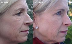 Rodan And Fields Before And After | Results achieved in 8 weeks using our REVERSE regimen for brown spots ... www.lmccain.myrandf.com