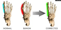 Walking After Bunion Surgery: Is It Possible?