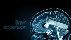 Scientists Create First Memory Expansion for Brain