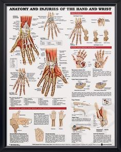 Anatomy and Injuries of the Hand and Wrist anatomy poster defines injuries like carpal tunnel, osteoarthritis, rheumatoid arthritis, finger maladies. Muscles for doctors and nurses.