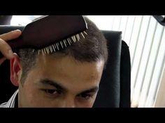 Conseillers Cheveux vous conseille en cheveux, greffe capillaire, implants, cheveux, FUE. Nous sommes en contact avec les meilleurs docteurs Ozgur FUE pour vous permettre de faire votre greffe du cheveux, implants, FUE, opération capillaire par les plus compétents