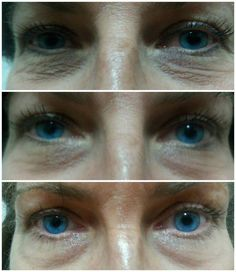 Multi function eye cream anyone? Redefine your eyes! Multifunction Eye Cream reduces puffiness, dark circles and redefines crows feet. One of my favs! Http://lromano.myrandf.com