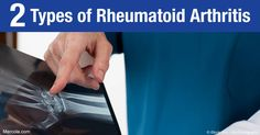 Take note of the two different types of rheumatoid arthritis and see the major differences that they have. http://articles.mercola.com/rheumatoid-arthritis/types.aspx