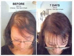 Balding? Hair thinning? Try the brand new product that's been flying off the shelves--It Works! Global's Hair Skin Nails