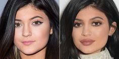 Inyecciones para engrosar labios: ¡un momento! Leed esta información