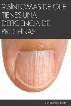 9 síntomas de que tienes una deficiencia de proteínas #salud