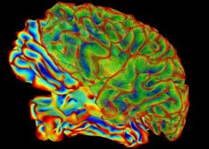 A National Institutes of Health (NIH) working group has laid out nine research areas the new American federal neuroscience initiative – Brain Research through Advancing Innovative Neurotechnologies (#BRAIN)