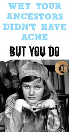 Why Your Ancestors Didn't Have Acne But You Do - find out how diet and lifestyle factors can help clear acne and other skin issues!