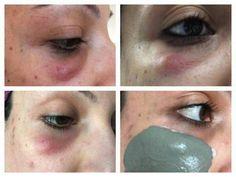 Black eye injury