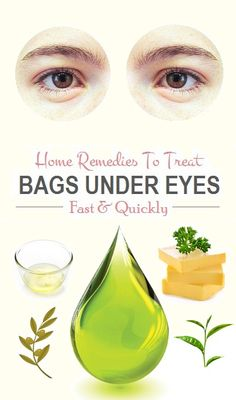 Home Remedies To Treat Bags Under Eyes