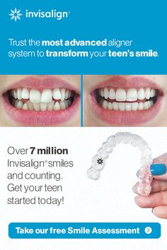 If you have always wanted to whiten your teeth but you did not know what to do, then you have come to the right place. Charcoal Teeth Whitening, Whitening Kit, Invisalign, Teeth Straightening, Adolescents, Teeth Care, White Teeth, Beauty Care, Skin Care Tips