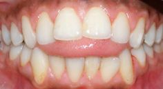 Smart Speech Therapy LLC Guest Post: Tongue Thrust Remediation Tips. Pinned by SOS Inc. Resources. Follow all our boards at pinterest.com/sostherapy for therapy resources.