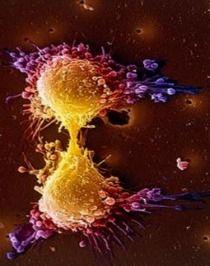 """""""Superpoblación de células fortalece tumores"""". SU MEDICO. 12 OCT 2012."""
