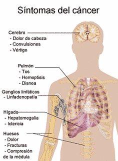 pólipos gastriques síntomas de diabetes