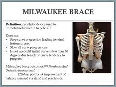 Scheuermanns kyphosis Video class of 2015 Milwaukee Brace, Spinal Fusion Surgery, Prosthetic Device, Scoliosis, Braces, Management, Health, Fitness, Tips