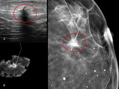 WK 2 BREAST ECR 2013 / / Ductal carcinoma in situ: ultrasound, mammography and MRI features with pathologic correlation - EPOS™ Vascular Ultrasound, Breast Image, Med School, Us Images, Surgery, Career, Study, Healthy, Life