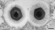 Mélange Megavirus (à gauche) / Mimivirus (à droite) dans une vacuole d'amibe.  © CNRS Photothèque/IGS  - ABERGEL Chantal