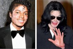 Vitiligo disease is the discoloration of the skin(white skin spots) due to the destroy of Melanocytes of the skin.