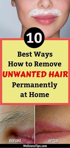 How To Naturally Remove Unwanted Hair Permanently At Home ? Realstyle-Network... #UnwantedHairRemovalOil #BodyHairRemovalHomeRemedies #MaleUnwantedHairRemoval #PermanentHairRemovalMethods #HairRemovalMethods Upper Lip Hair Removal, Hair Removal Diy, At Home Hair Removal, Hair Removal Methods, Hair Removal Cream, Remove Unwanted Facial Hair, Unwanted Hair, Electrolysis Hair Removal, Hair Removal Machine