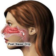 Home Remedies For Post Nasal Drip The problem of post nasal drip results from formation of excess mucus. Common causes of post nasal drip include cold, allergy, gerd, flu and so on. Exposure to pollution and dust can also result in post nasal drip. Natural Health Remedies, Natural Cures, Herbal Remedies, Sinus Remedies, Cold Remedies, Natural Treatments, Natural Healing, Health And Beauty, Health And Wellness