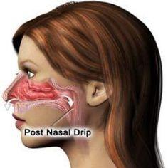 Herbal remedies for post nasal drip: echinacea; peppermint; eucalyptus; ginger tea; basil; butterbur