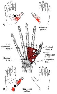 Handwurzelmuskel   The Trigger Point & Referred Pain Guide