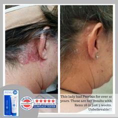 RENU 28 is the world's first and only Redox Signaling skin care line. RENU 28 gel repairs and comforts damaged, aging skin and is only available from ASEA. Go to http://saude.teamasea.com/newsite/products/Renu28.aspx for more info.