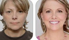 Yoga For The Face Secrets: Appear More Youthful And Acquire A Non-Invasive Facelift Via Face Revival Exercises