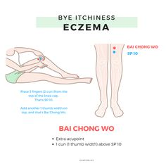 How does Chinese Medicine view Eczema - Alternative Medicine Acupuncture For Weight Loss, Acupuncture Points, Acupressure Points, Acupuncture Benefits, Alternative Health, Alternative Medicine, Traditional Chinese Medicine, Acupuncture, Wellness